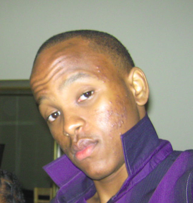 2009: Look at my skin and tell me this is normal?